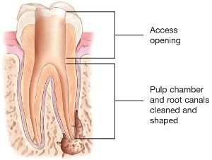 root canal treatment 3