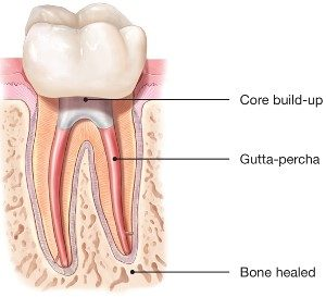 root canal 5