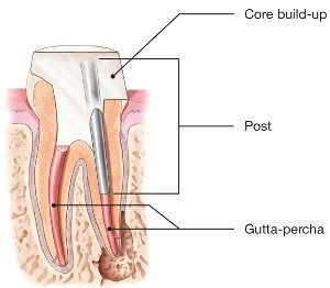 root canal treatment 6